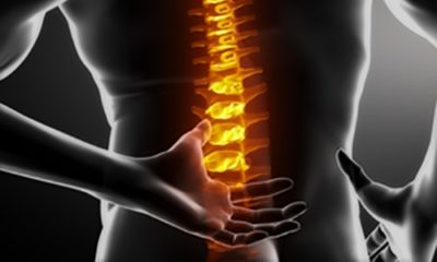 X ray image of a person with lower back pain